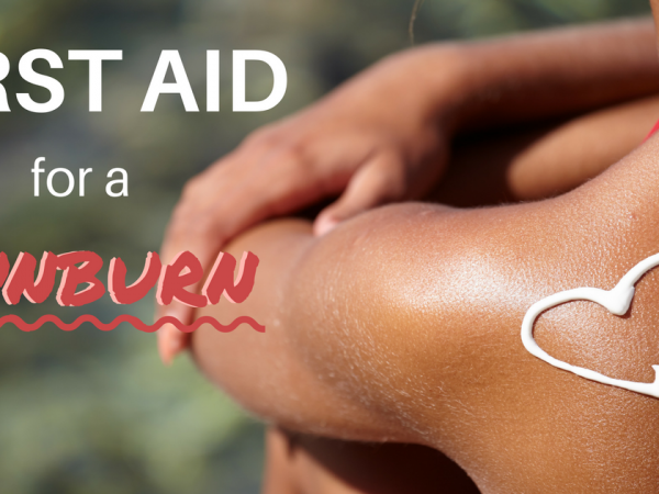 First Aid for Sunburn Image